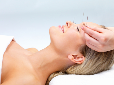Acupuncture (TCM)