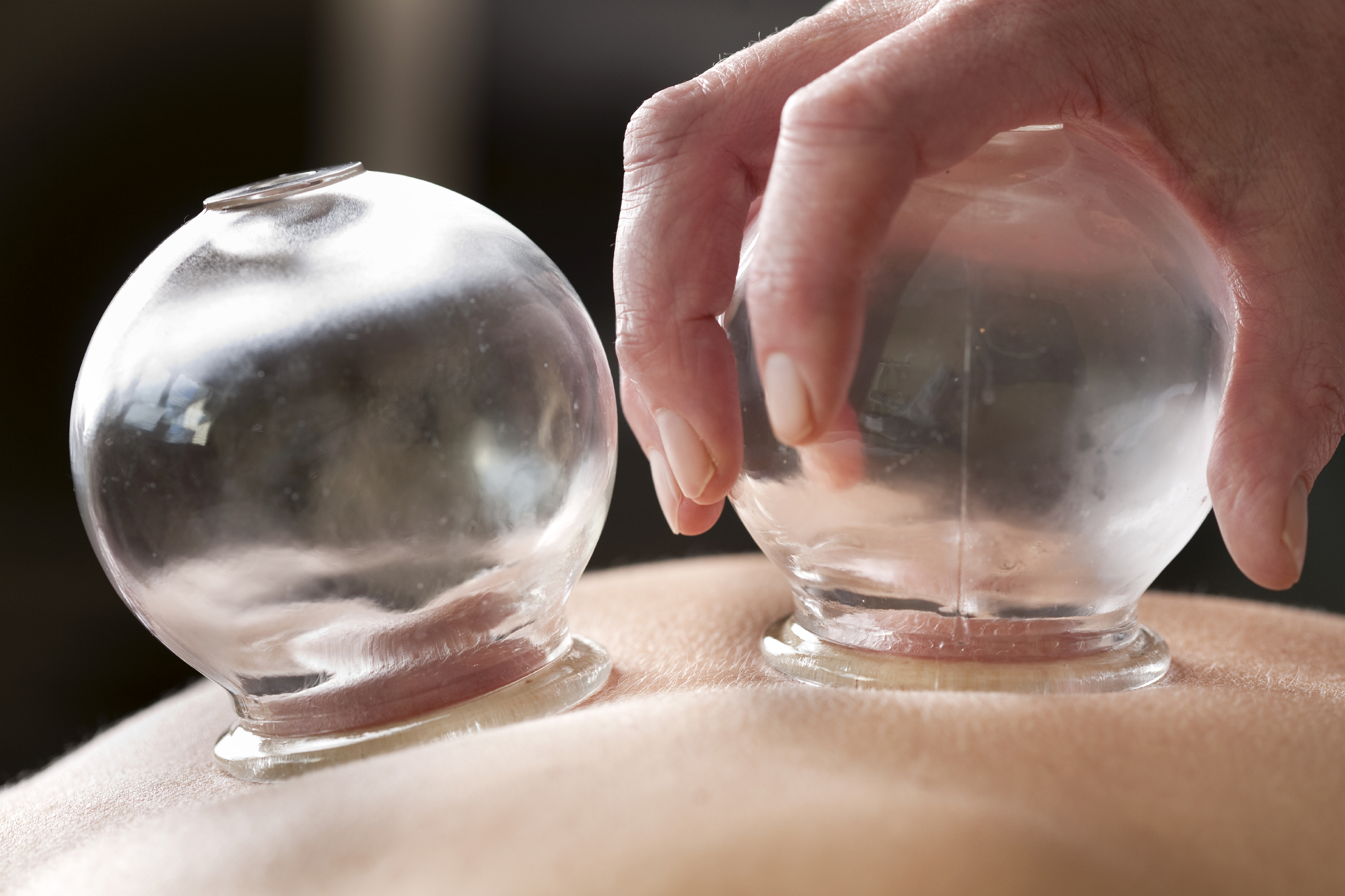 Acupuncture Glass Cups